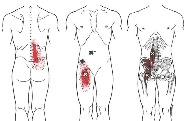 ¿Cómo influye el psoas en el dolor lumbar?