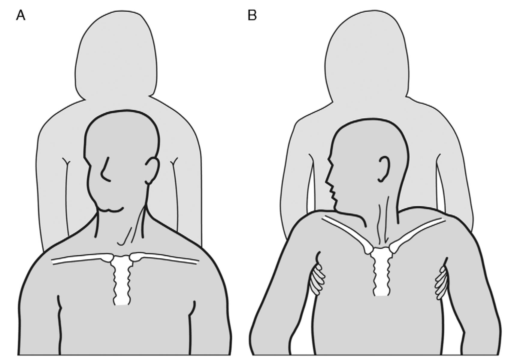 Muscular síntomas dolor crónicos romboide de