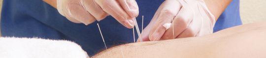 La acupuntura en fisioterapia invasiva - Fundamentos y utilización clínica