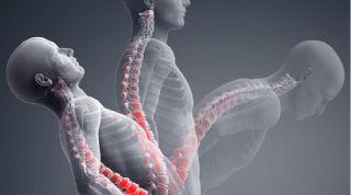 Evaluación y reeducación dinámica de las disfunciones lumbares