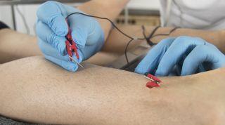 Neuromodulación para fisioterapeutas