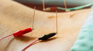 Electroneuroacupuntura: introducción y casos clínicos
