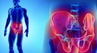 Abordaje de la pubalgia: un enfoque práctico