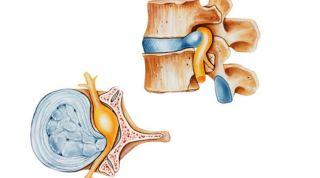 Técnica de absorción específica de la hernia lumbar discal
