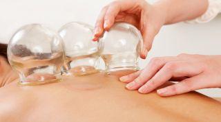 Cupping Therapy. Tratamiento fisioterapéutico con ventosas - Madrid