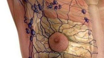 Tratamiento del edema linfático y venoso. Método Leduc®- Barcelona