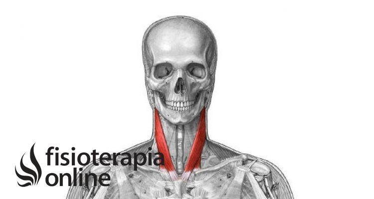 Esternocleidoocipitomastoideo (ECOM). ¿Qué importancia tiene este músculo en los trastornos de la columna cervical?