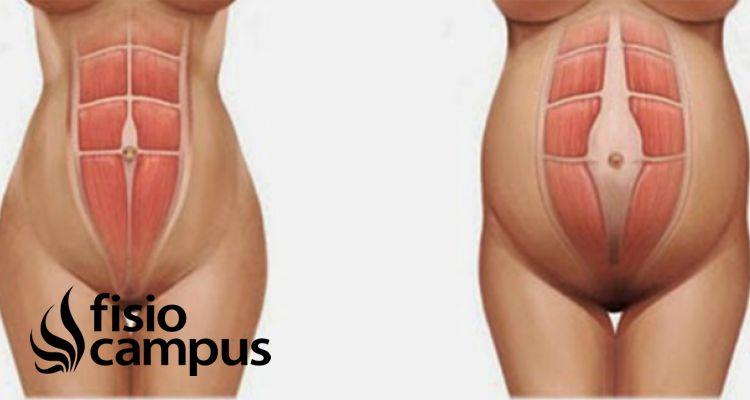 Hernia umbilical ejercicios contraindicados