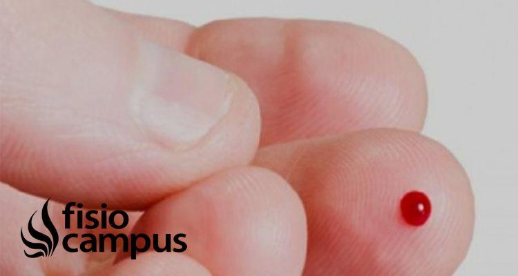 ¿Qué es la Hemofilia y qué papel juega la fisioterapia en este ámbito?