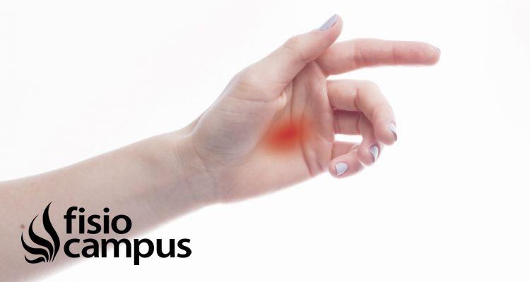Tratamiento del dedo en gatillo basado en la evidencia