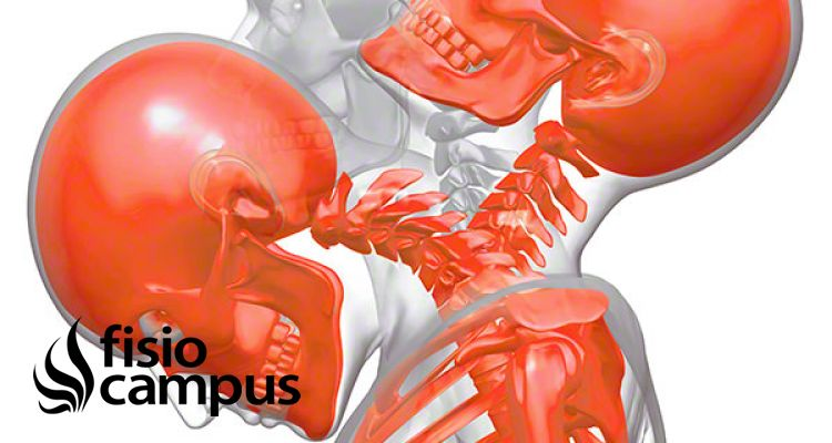 Whiplash o latigazo cervical: Abordaje Osteopático