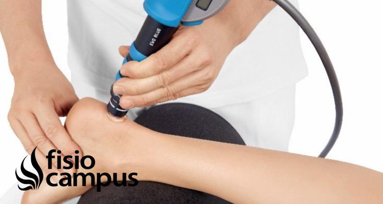 ¿Es efectiva la terapia con ondas de choque en la tendinopatía de Aquiles
