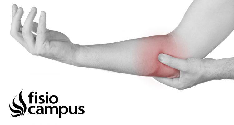 Ondas de choque en el tratamiento de la epicondilitis: ¿qué dice la evidencia?