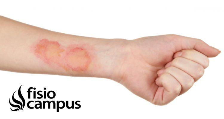 Fisioterapia en pacientes quemados | FisioCampus