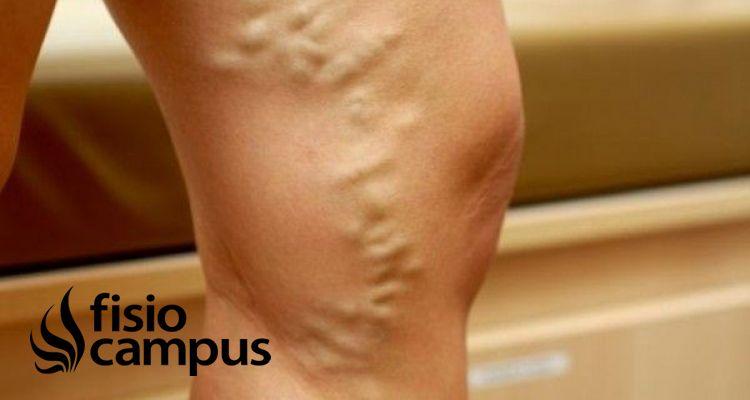 Insuficiencia venosa: causas, diagnóstico y medidas para abordaje en fisioterapia