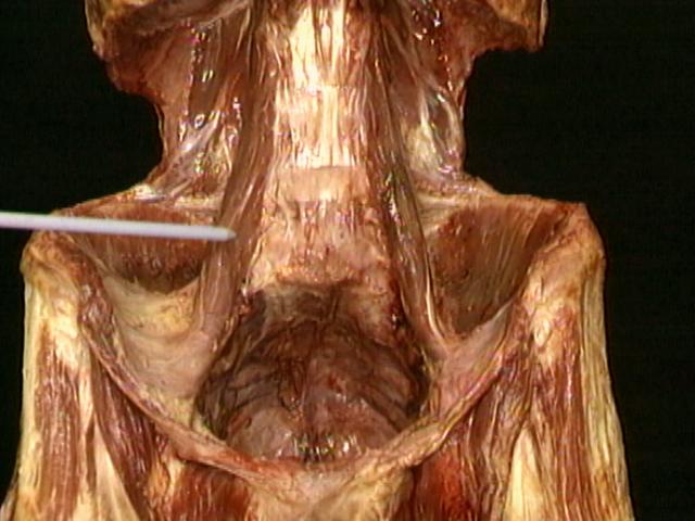 Cómo influye el psoas en el dolor lumbar?   FisioCampus
